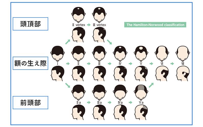 男性の薄毛パターン