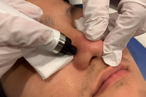 ハイドロヴィーナスを使用してお顔の洗顔